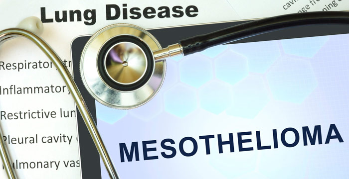 What Is Mesothelioma Know Your Legal Rights Spada Law Group Llc