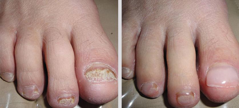 Acrylic Nails On Toenails | Keryflex Nail Restoration | Tanglewood Foot  Specialists