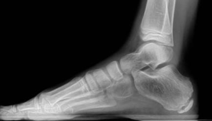 bruised foot treatment