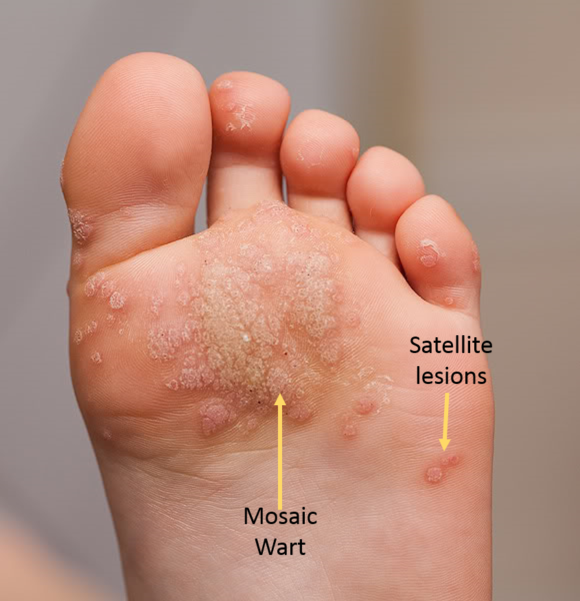 What Are Plantar Warts And How Do We Treat Them Prairie Path Foot Ankle Clinic