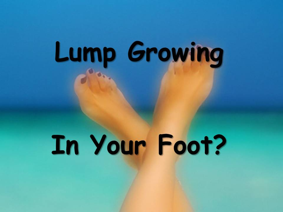 What Do I Do If A Lump Suddenly Appears On My Foot