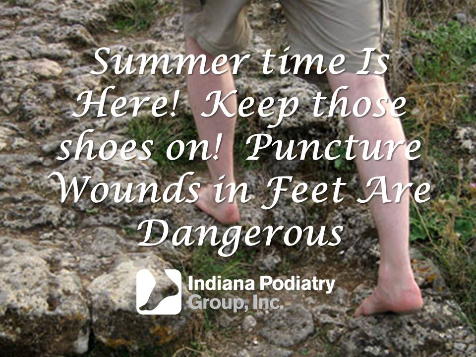 Summer time Is Here! Keep those shoes on! Puncture Wounds in Feet