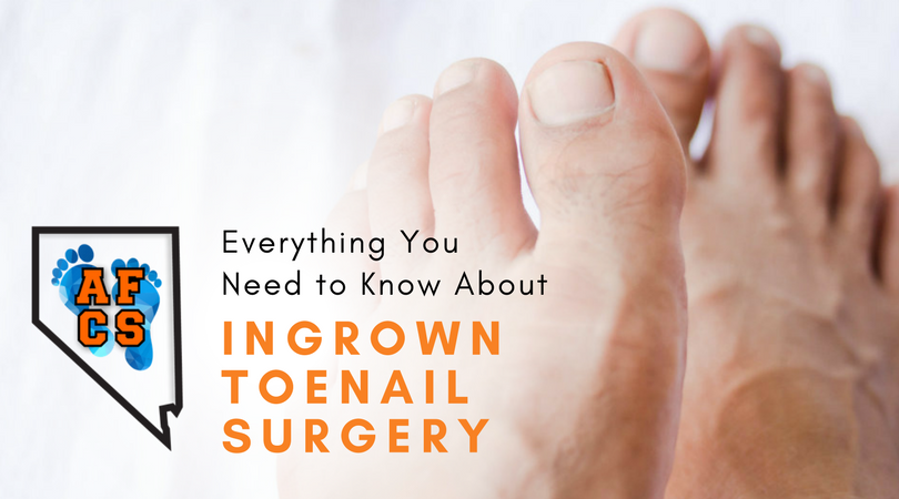 All You Need To Know About Ingrown Toenail Surgery Absolute Foot