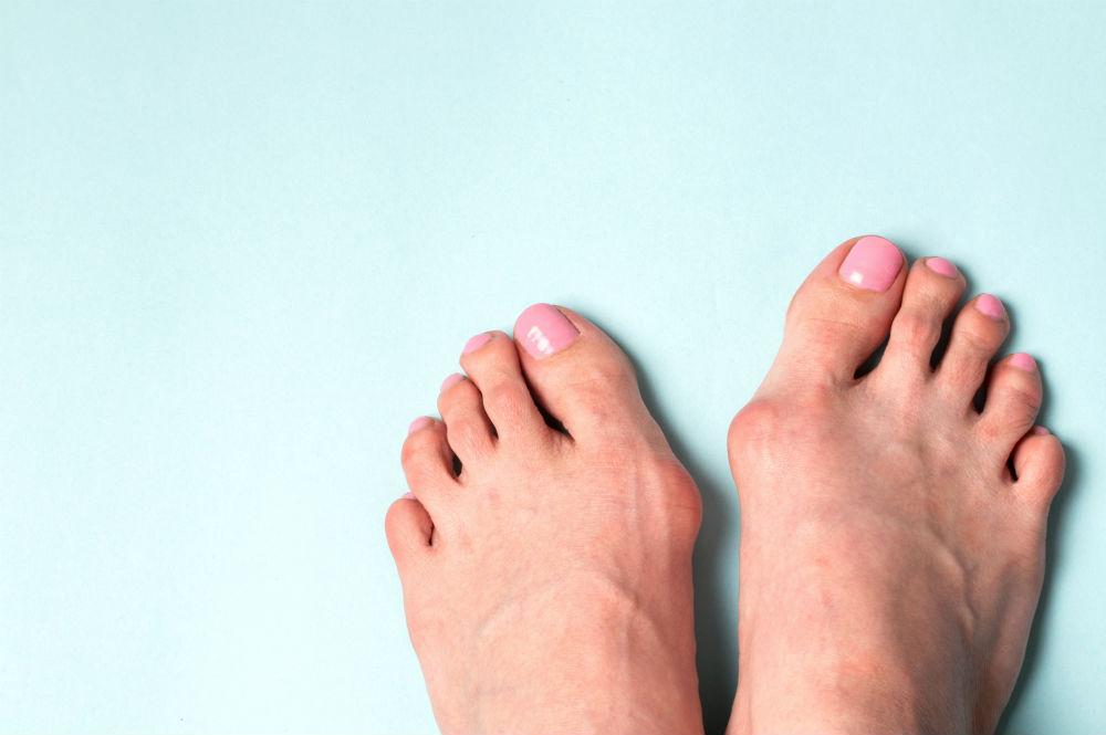 4 Ways to Prevent Toe Deformities | Foot & Ankle ...