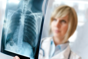 Lung Cancer Caused by Asbestos Exposure | Neblett, Beard