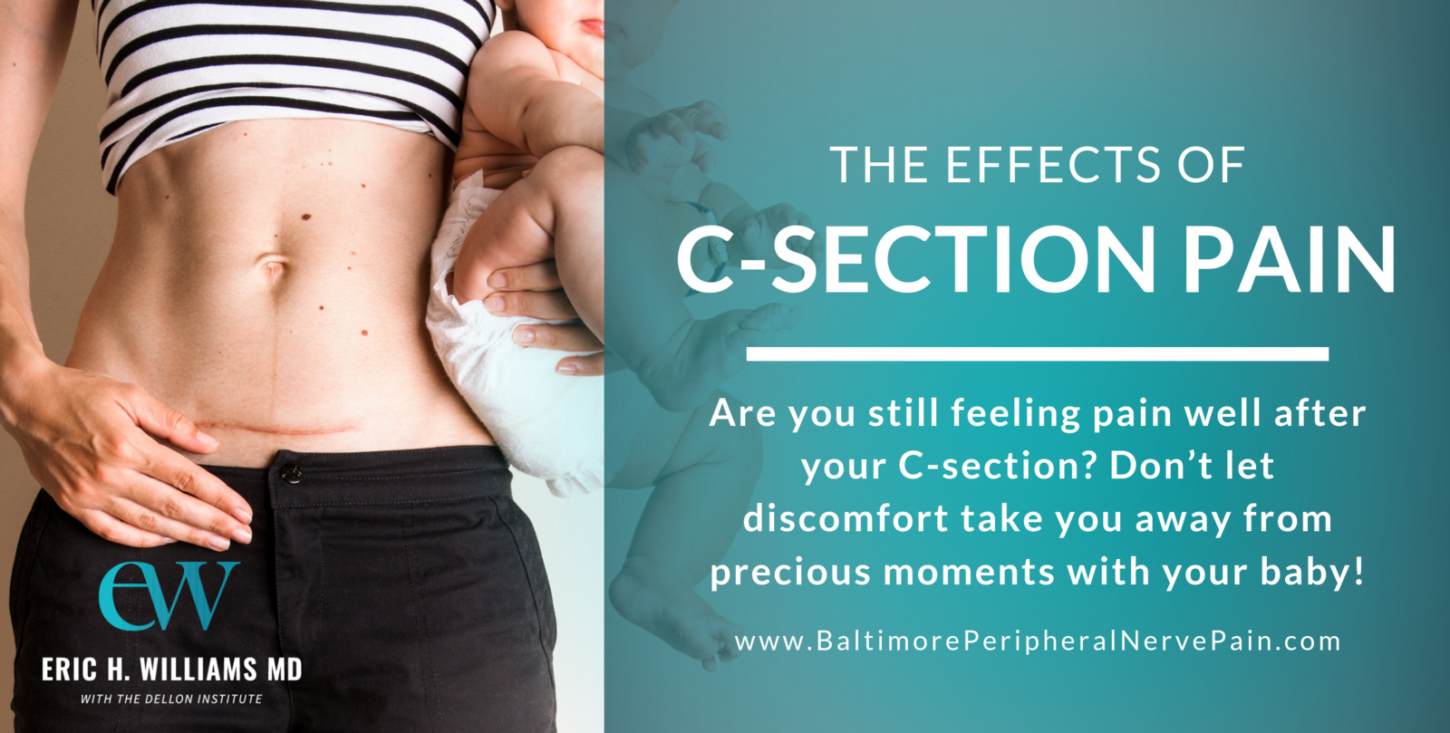 The Effects of C-Section Pain | Dr. Eric H. Williams