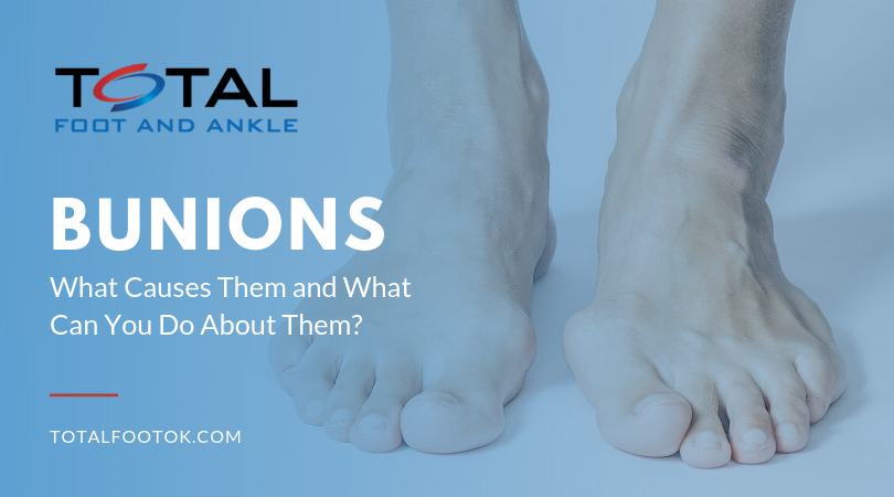 78e96e0d072 Bunions: What Causes Them? | Total Foot and Ankle, PC