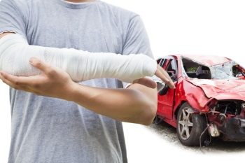 Getting Help for Car Accident Arm and Leg Injuries | Soli