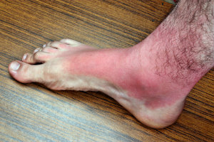 Burns on the Feet | Absolute Foot Care Specialists