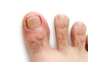 Ingrown Toenail Removal | Absolute Foot Care Specialists