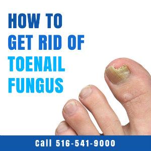 How To Get Rid of Toenail Fungus | Massapequa Podiatry Associates, P.C.