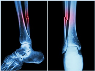 Car Accident Personal Injury Claims For Broken Bones Inland Empire