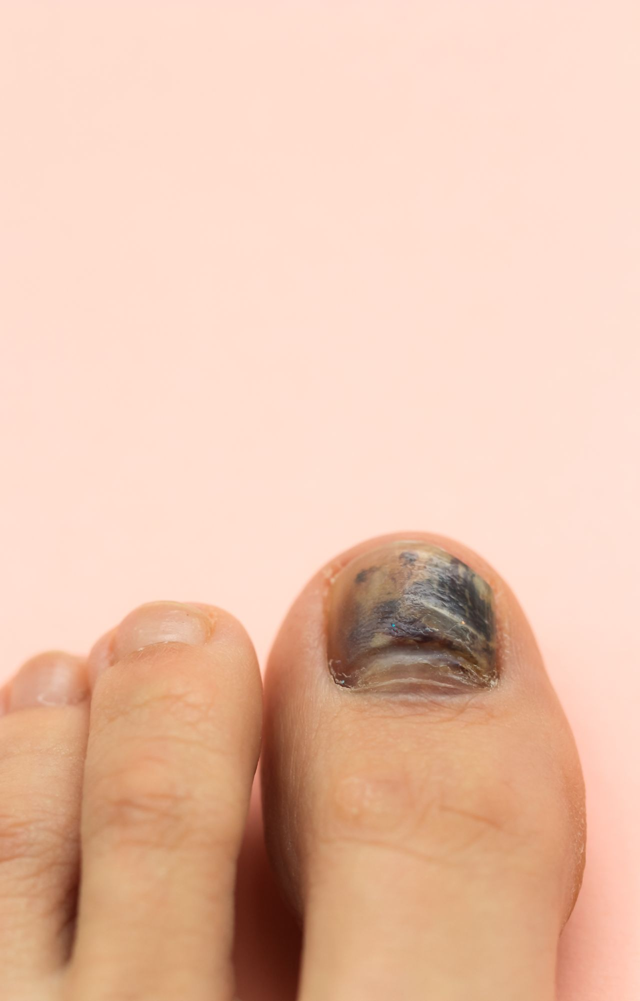 What Does It Mean If I Get A Black Toenail After Running -4985