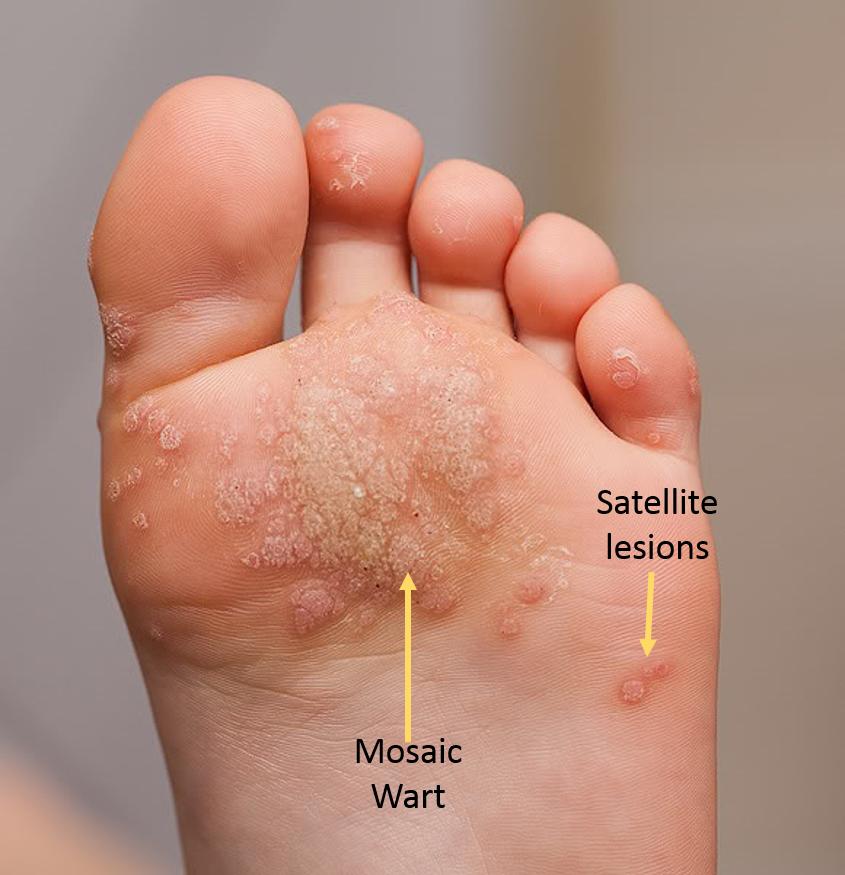 Wart under foot. Wart on my foot treatment