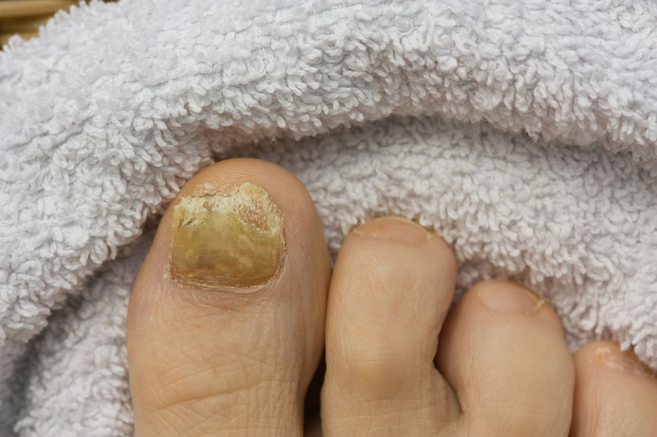 To get rid of a fungal nail, it is important to treat the rest of ...