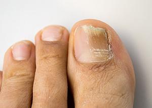 Toenail Fungus Treatment Orlando | Foot & Ankle Associates of Florida