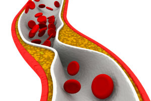 Library on Nerve Pain | Foot & Ankle Associates of Florida