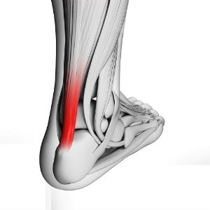Types Of Tendon Surgery Foot Ankle Associates Of Florida