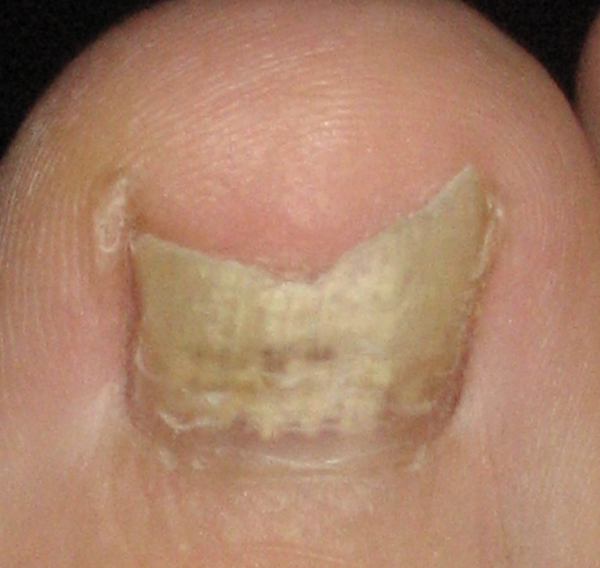Fungal Toenails | Issaquah Foot & Ankle Specialists