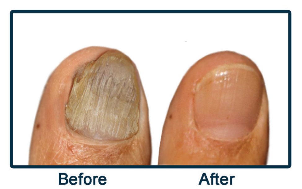 Eliminate Ugly Toes | Issaquah Foot & Ankle Specialists