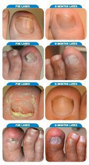 Toenail Fungus | Laser Treatment | Martin Foot & Ankle