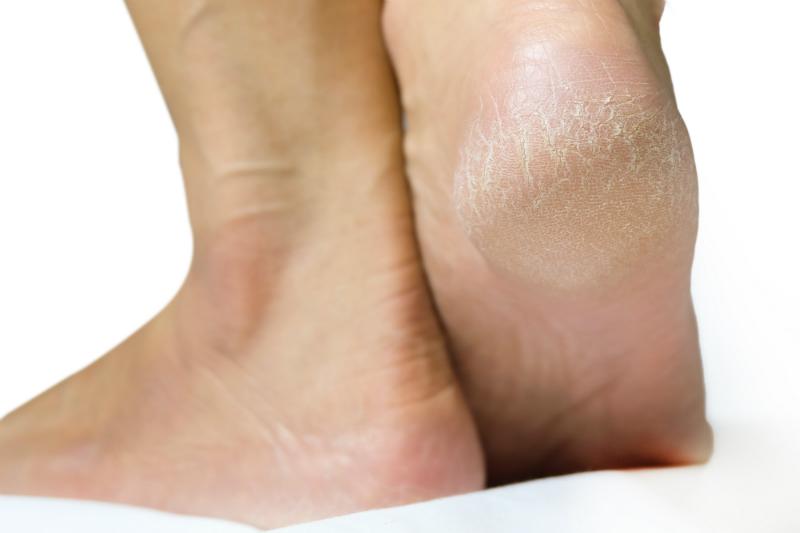 cracked feet wont heal