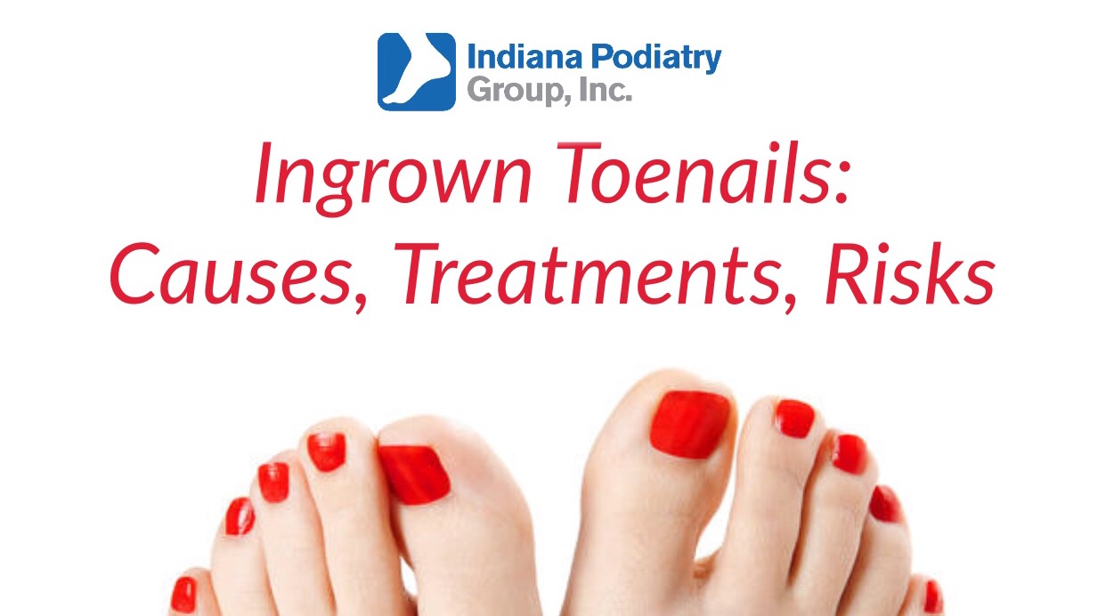 Ingrown Toenails: Causes, Treatments, Risks | Indiana Podiatry Group