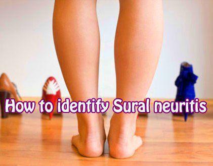 Sural Neuritis Indiana Podiatry Group