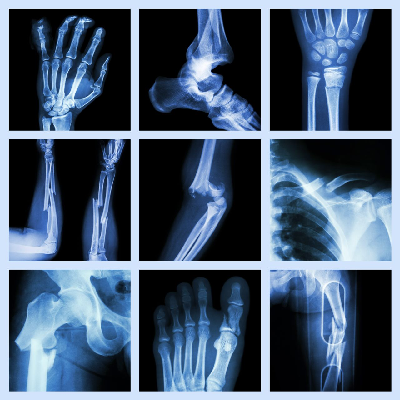 Bone Fractures Caused From A Pedestrian Or Bicycle Accident Jim