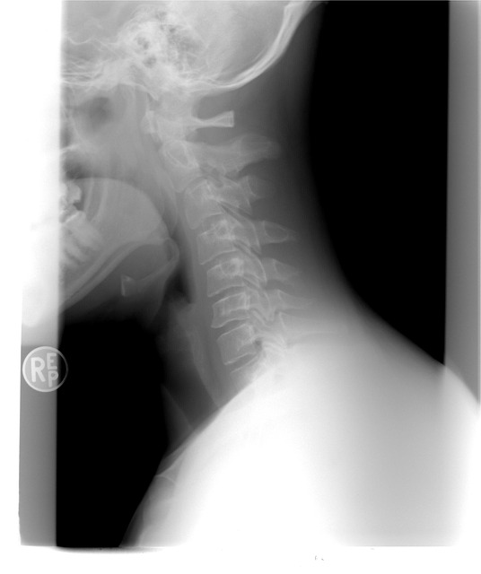 Cervical Radiculopathy is a Painful Injury | Mahaney & Pappas, LLP