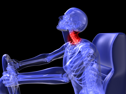 How Much Is A Neck Injury From An Auto Accident Worth? | Mahaney