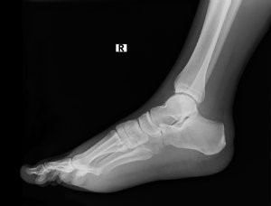 Stress Fractures Cracks In Your Supports Martin Foot Ankle
