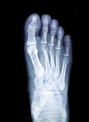 Freibergs Disease Foot Legion Martin Foot Ankle