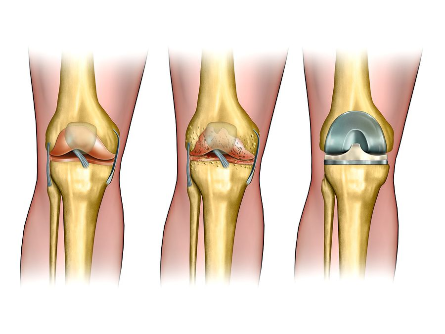 4 Key Facts About Knee Replacement Surgery Manfred F Ricciardelli