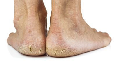 State-of-the-Art Heel Fissure Treatment