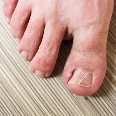 How to Prevent Toenail Fungus | Richardson Podiatry Center