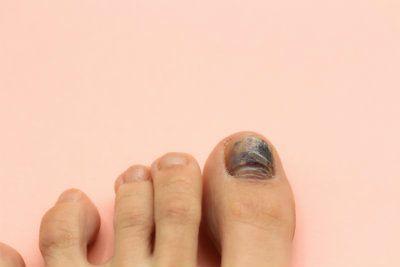 What Causes Black Toenails? | Richardson Podiatry Center