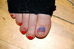 Black Toenail Treatment Carson City Nv Sierra Foot Amp Ankle