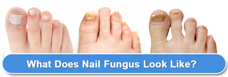 Fungal Skin and Nail Pack | Next Step Foot & Ankle Clinic