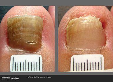 Toenail Fungus FAQ\'S: Do I Have a Toenail Fungus?   Sol Foot & Ankle ...