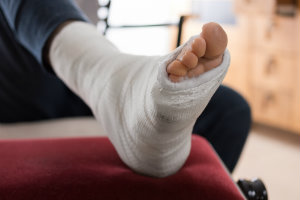 Healing A Broken Foot Or Ankle Family Foot Ankle
